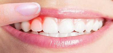gum_treatment.jpg