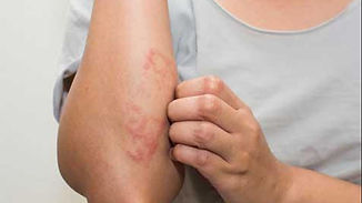 eczema acupuncture