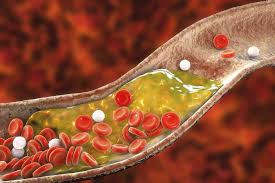 HS-A PLAYS A KEY ROLE IN DEVELOPMENT OF THE AUSTRALIAN FIVE-POINT PLAN TO TACKLE CHOLESTEROL