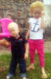Photos_Enfants albinos.JPG