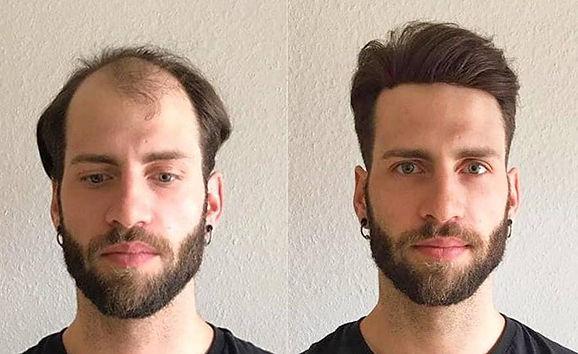 protese-capilar-masculina-por-juan-alves