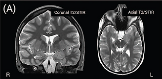 MRI clinical standard.png