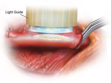Хирургические клей латает «разбитые» сердца