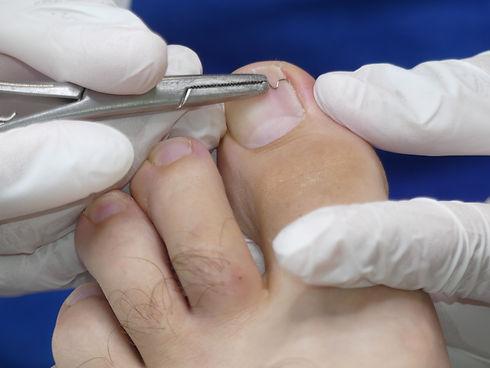 Orthonyx Bracket, toenail clamp, the Pod