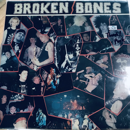 Broken Bones Never Say Die