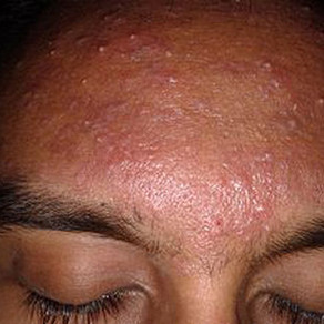 Acne Protocol