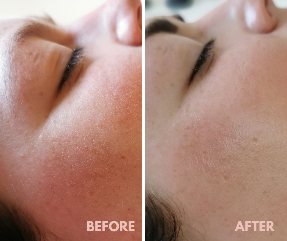 Before & After Skinfit facial