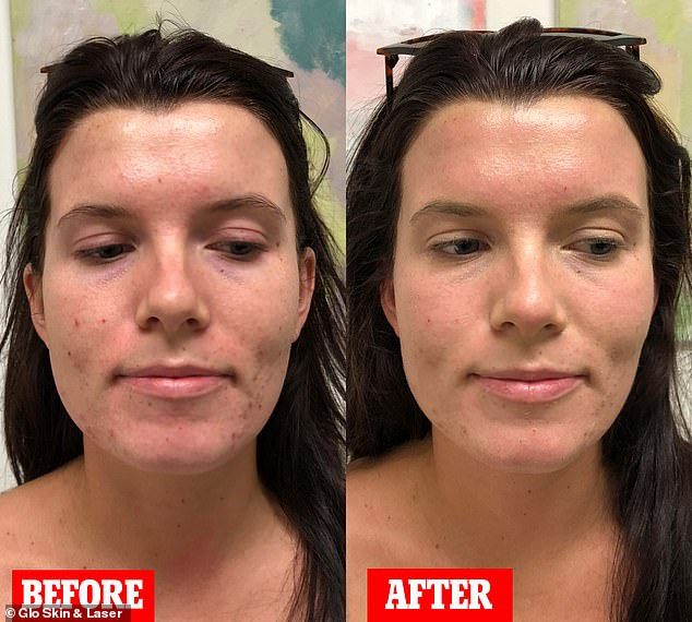 before and after bb glow facial