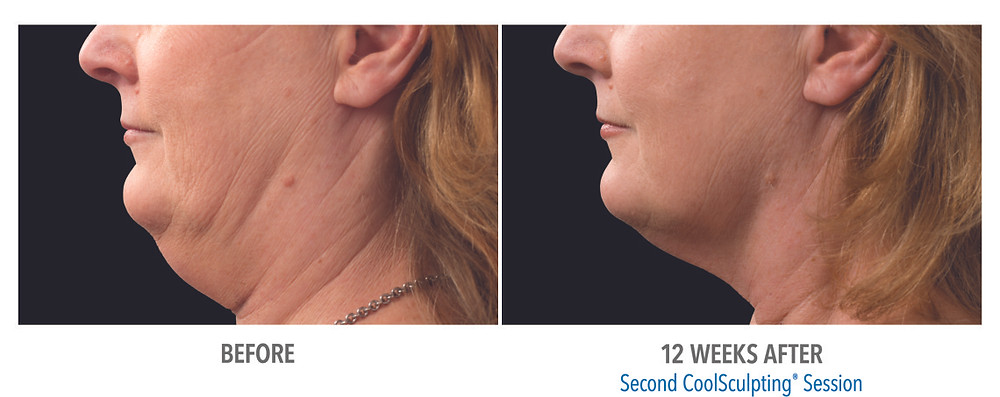 Before and after coolsculpting treatment chin