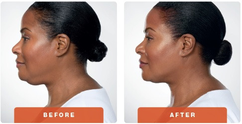 kybella-before-after-3-