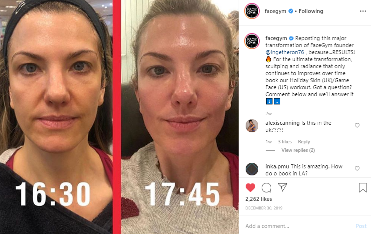 @facegym before and after