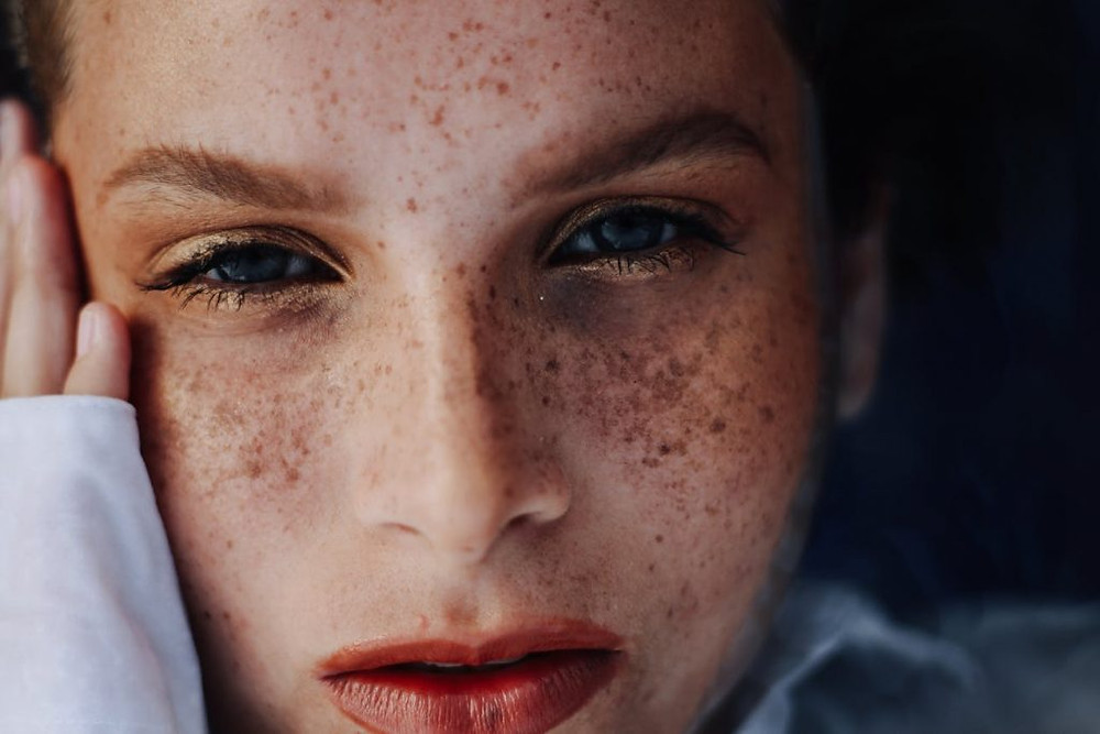 Close up beauty freckles