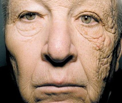 sun premature ageing.jpg