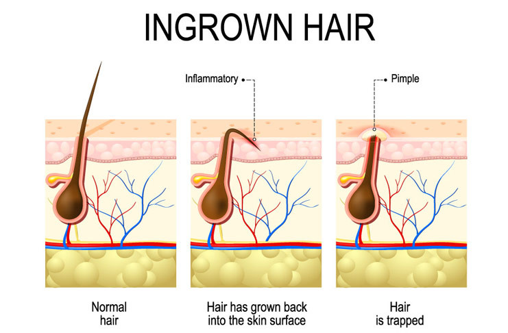Diagram of ingrown hair