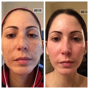 Obagi nuderm transformation before and after 12 weeks