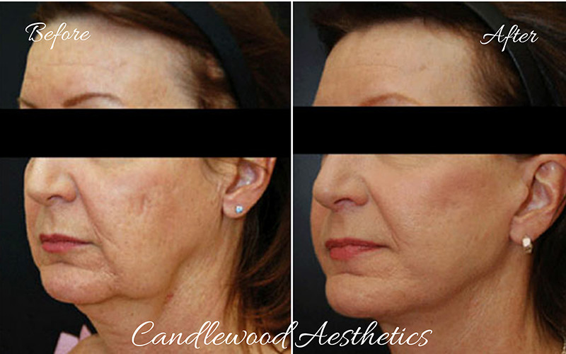 pdo thread lift by candlewood aesthetics