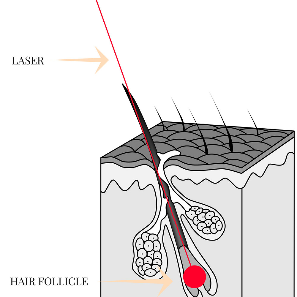 what happens in laser hair removal
