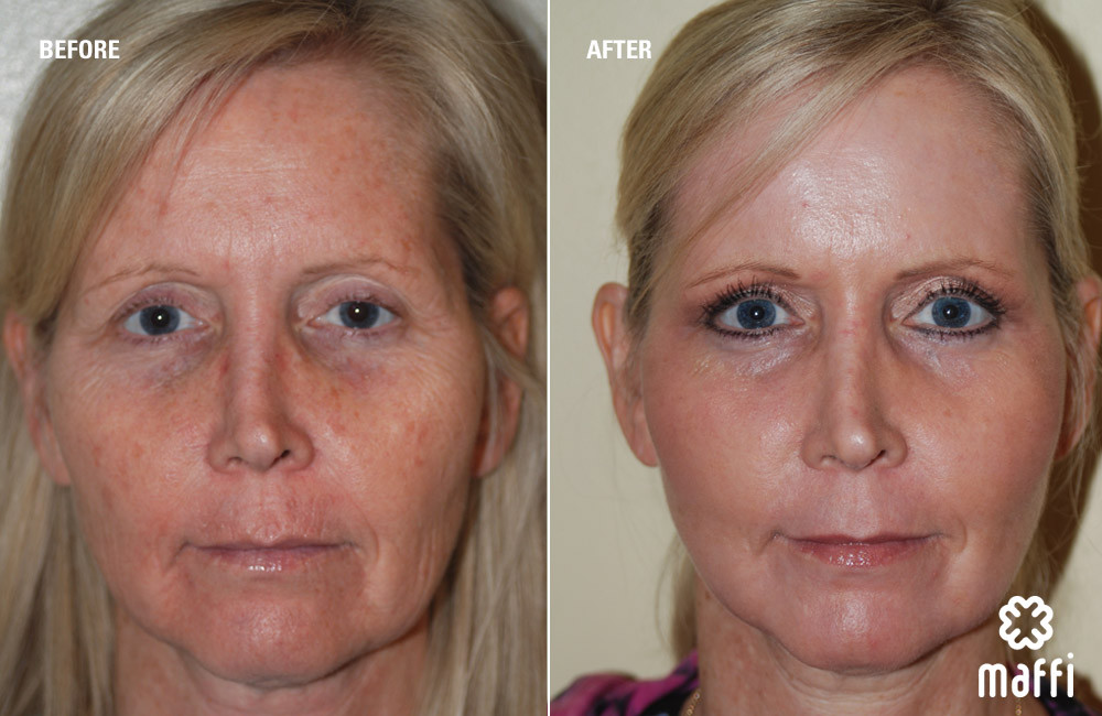 before and after laser treatment maffic clinics