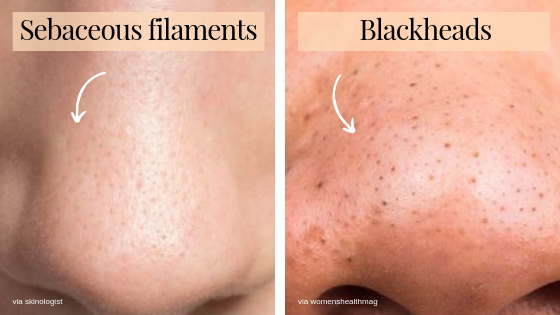 Sebaceous filaments VS blackheads (1)