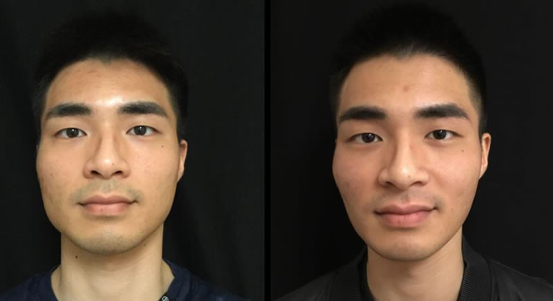 Botox masseter lift before and after