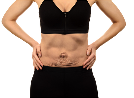 What Is Diastasis Recti Abdominal Muscle Separation And What To Do About It