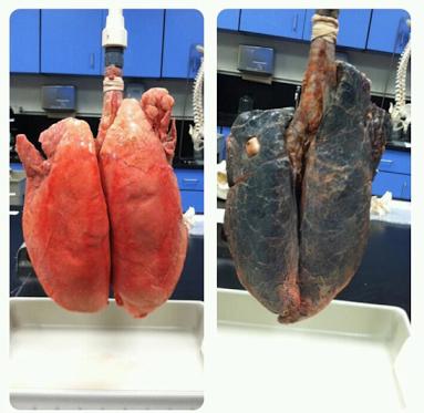 les jolis poumons d'un fumeur