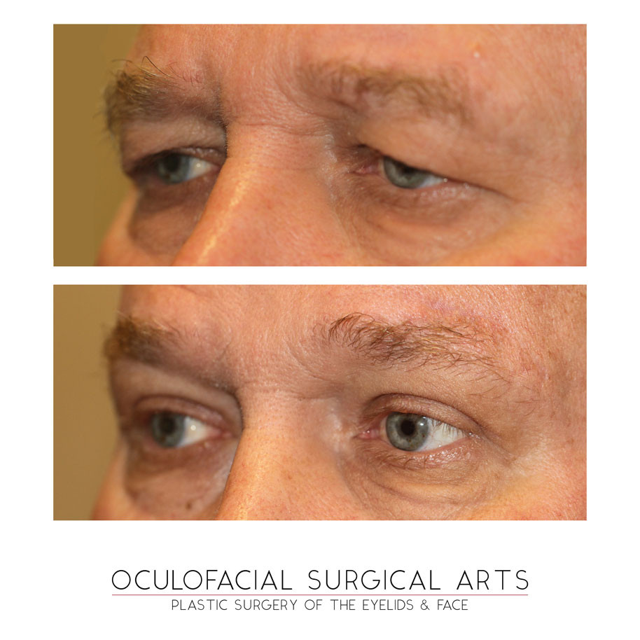Upper Blepharoplasty - Brow Lift