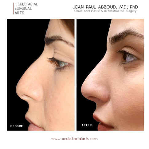 Non-Surgical Rhinoplasty and Nasal Contouring
