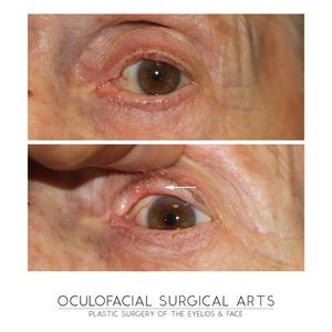 Eyelid Skin Cancer