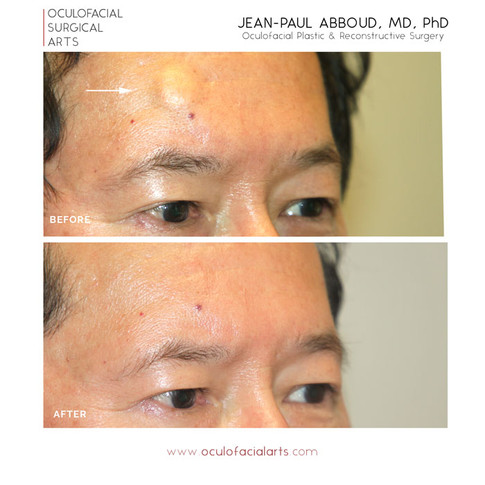 Excision of Forehead Lipoma