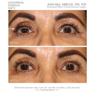 Scarless Upper Eyelid Ptosis Repair