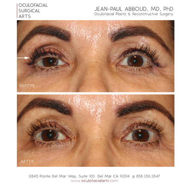 Scarless Upper Eyelid Ptosis Repair