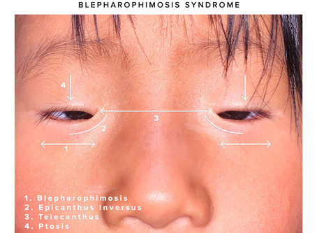 What is Blepharophimosis Syndrome?