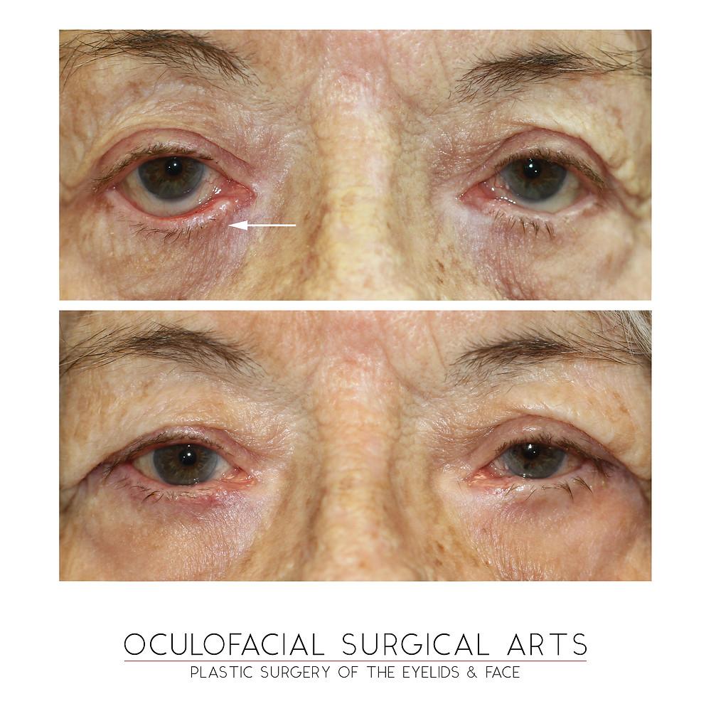 Eyelid Ectropion Repair