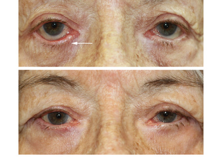 What is an Eyelid Ectropion?