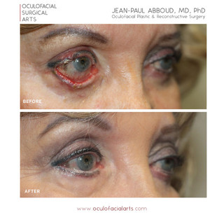 Eyelid Retraction/Bell's Palsy