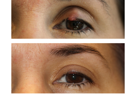 What is a Chalazion?