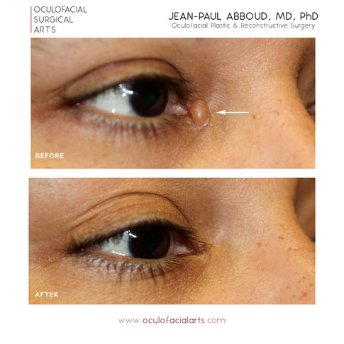 Eyelid Lesion - Medial Canthus