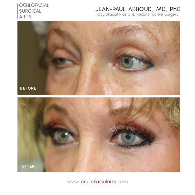Scarless Upper Eyelid Lift (Ptosis Surgery) & Scarless Lower Eyelid Blepharoplasty
