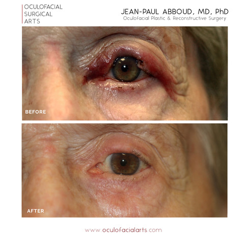 Full Thickness Upper Eyelid Reconstruction after Mohs Excision