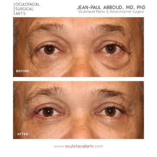 Male Upper & Lower Eyelid Blepharoplasty