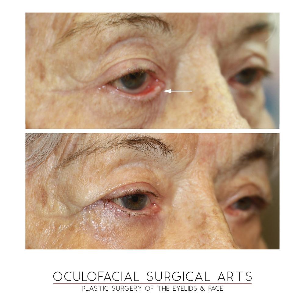 Eyelid Ectropion Repair - Retractor Reinsertion