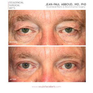Male Upper Eyelid Blepharoplasty