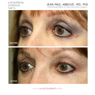 Lower Blepharoplasty Revision, Canthoplasty, & SOOF Lift