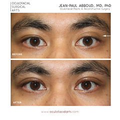 Asian Blepharoplasty/Double Eyelid Surgery