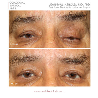 Severe Congenital Ptosis (with a non-functioning eyelid muscle)
