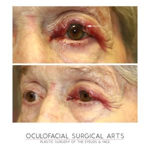 Eyelid Mohs Surgery