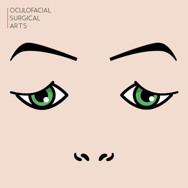 Upper Eyelid Dermatochalasis