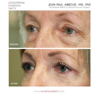 Upper & Lower Eyelid Blepharoplasty with Fat Repositioning