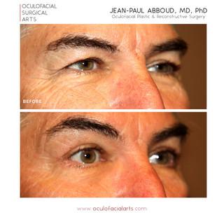 Male Upper Eyelid Blepharoplasty and Lower Skin Pinch